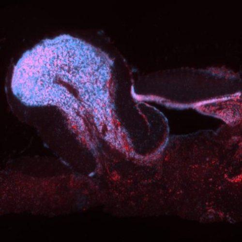 OXTR on sagittal section of brain